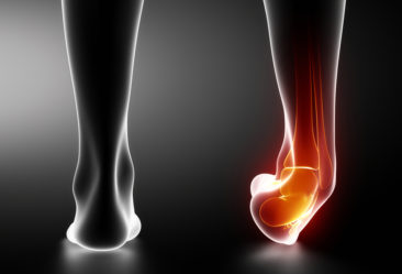 shows inflammation and pain in the heel and arch due to plantar fasciitis