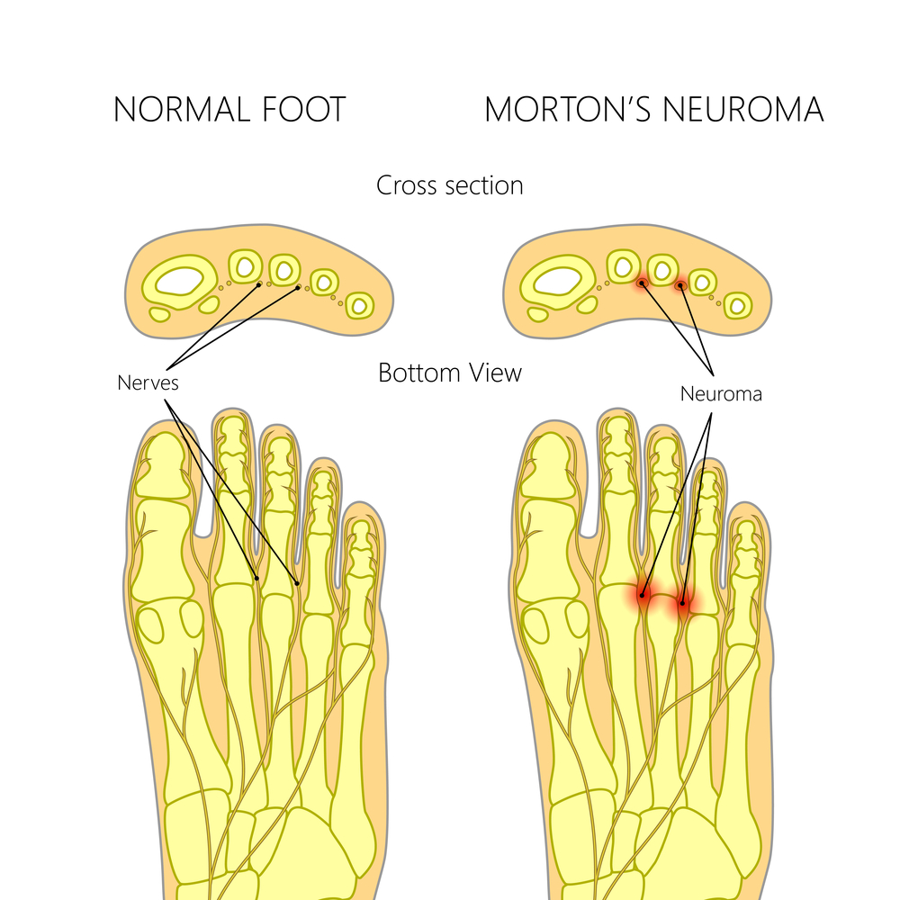 Mortons Neuroma Treatment Brisbane